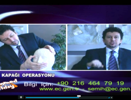 Dr. Semih GÖK ( Göz Kapağı Operasyonu)